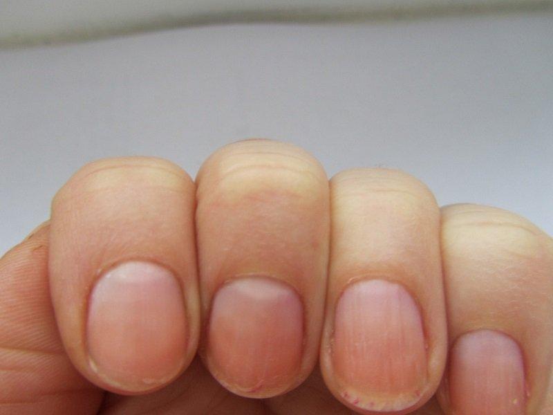проблемные ногти