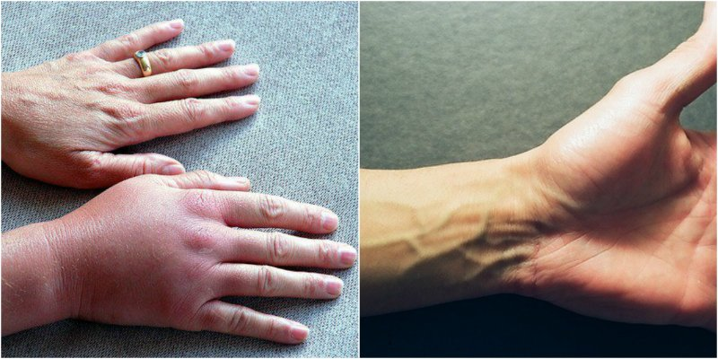 почему немеют руки