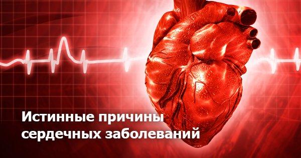 Реальные причины заболеваний сердца. И дело тут вовсе не в жирной пище…