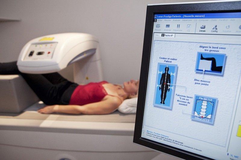 признаки остеопороза ног
