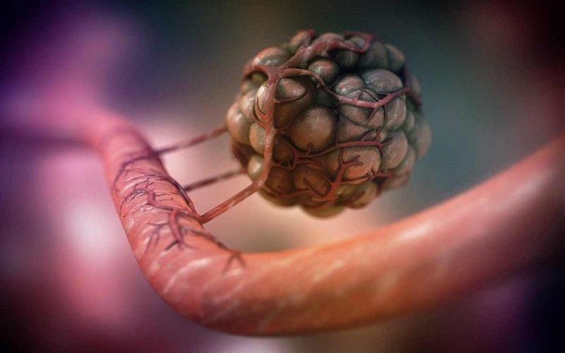 ранняя диагностика раковых заболеваний