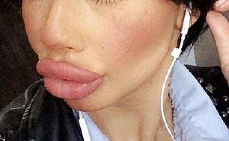 неудачное увеличение губ