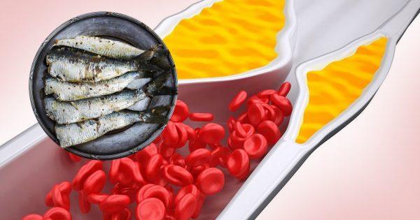 ТОП-8 продуктов, которые очищают сосуды! Избавь себя и близких от серьезной проблемы.