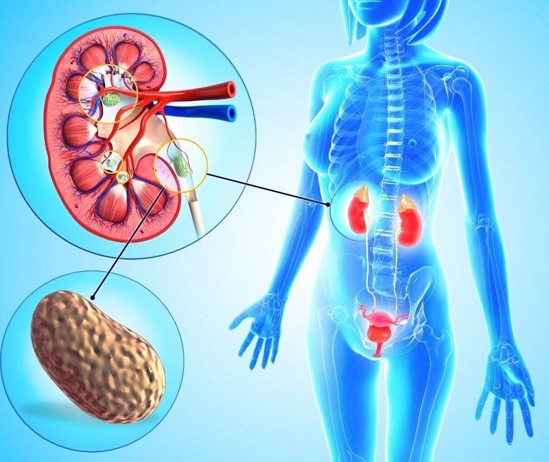 лечение и профилактика мочекаменной болезни