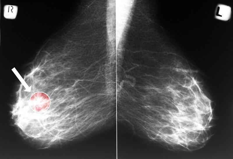 профилактика рака молочной железы у женщин