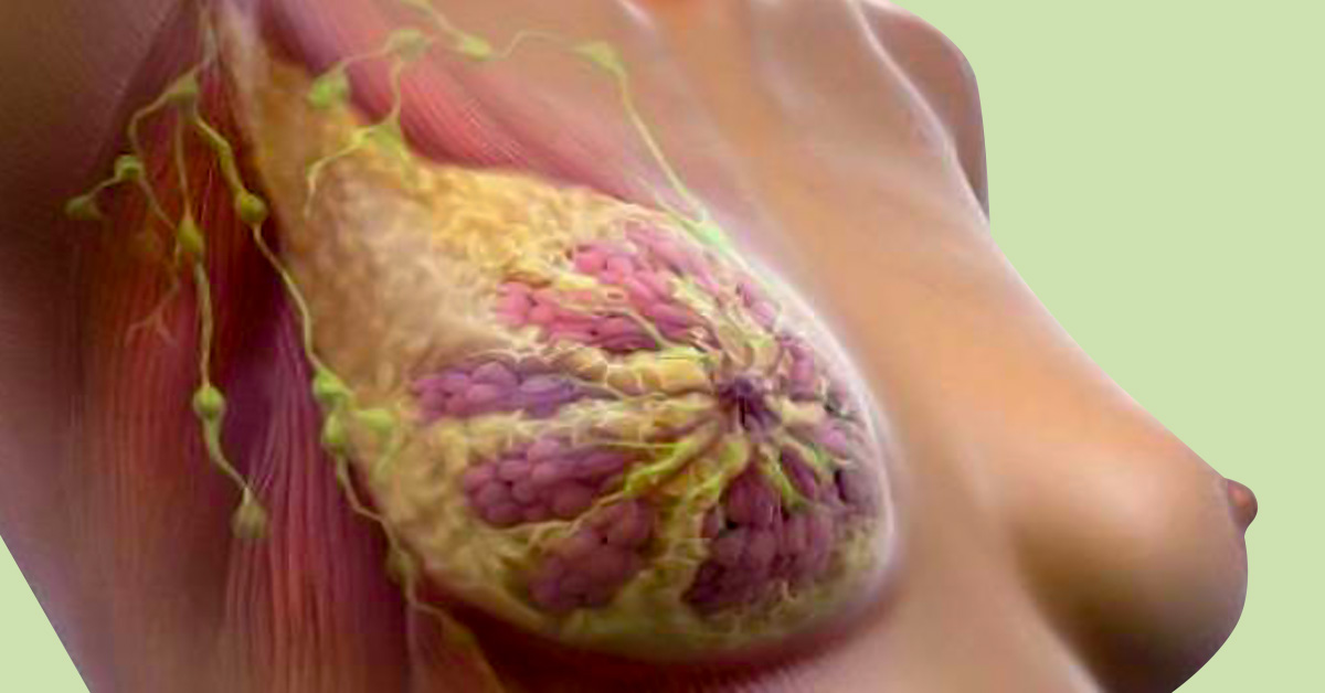 признаки рака молочной