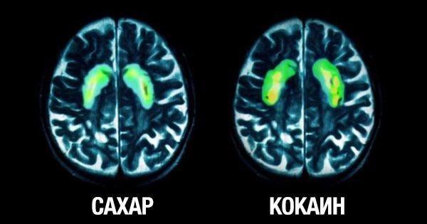 Вот как действует обычный сахар на твой мозг. Жаль, что я не прочитал этого раньше…
