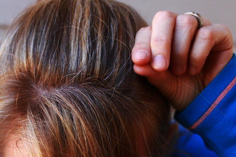 Седая прядь волос и почему она не в силах разрушить твою жизнь