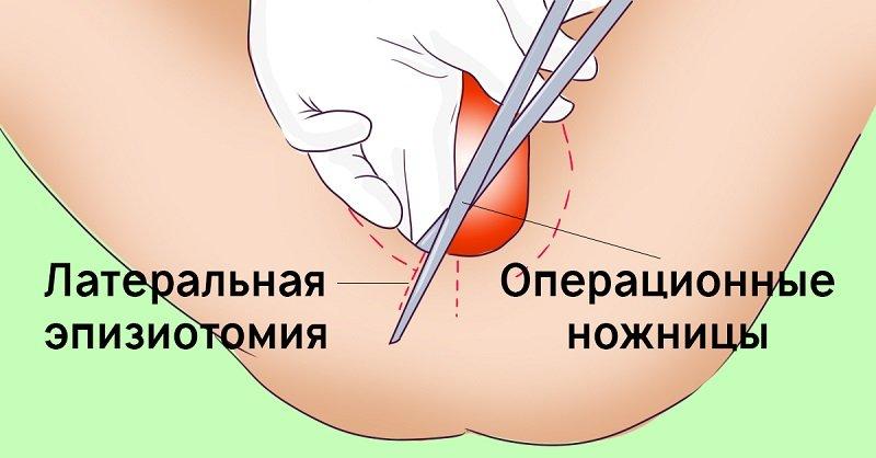 швы после родов долго болят