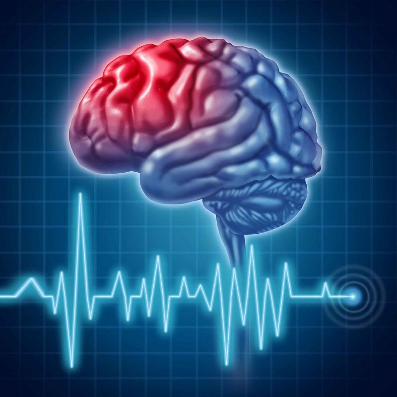 признаки и симптомы инсульта