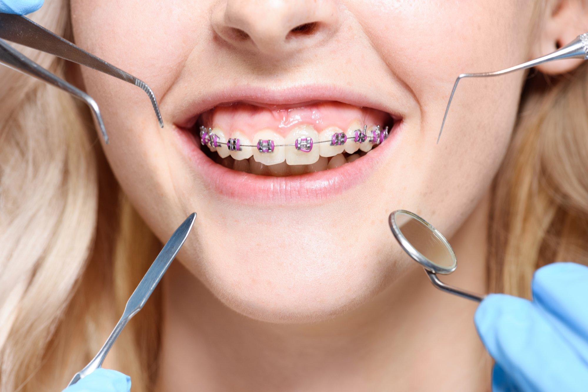как ухаживать за зубами и полостью рта