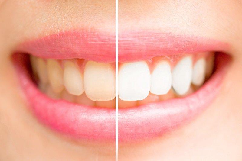 как ухаживать за зубами каждый день