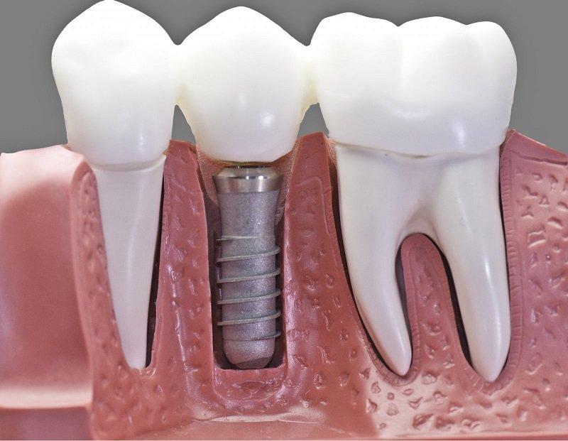 как ухаживать за зубами советы стоматолога