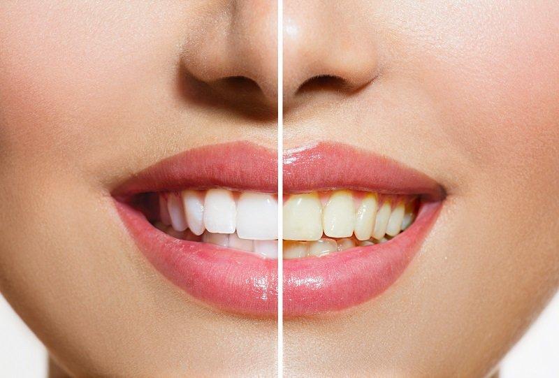 отбеливание зубов с клубникой и содой