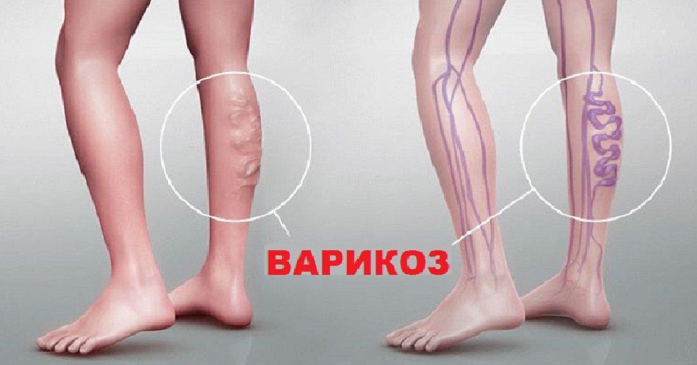 Как лечат от варикоза вен на ногах