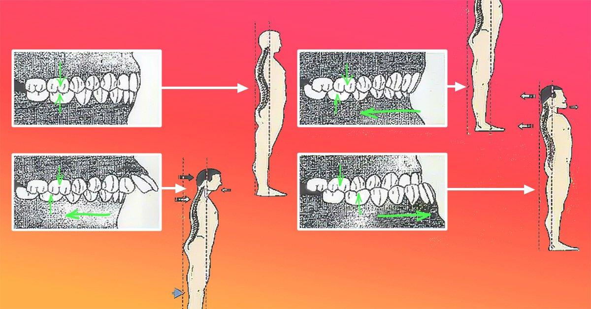 стоматологическое отбеливание зубов
