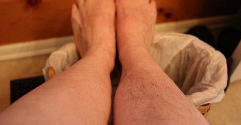 убрать нежелательные волосы в домашних условиях