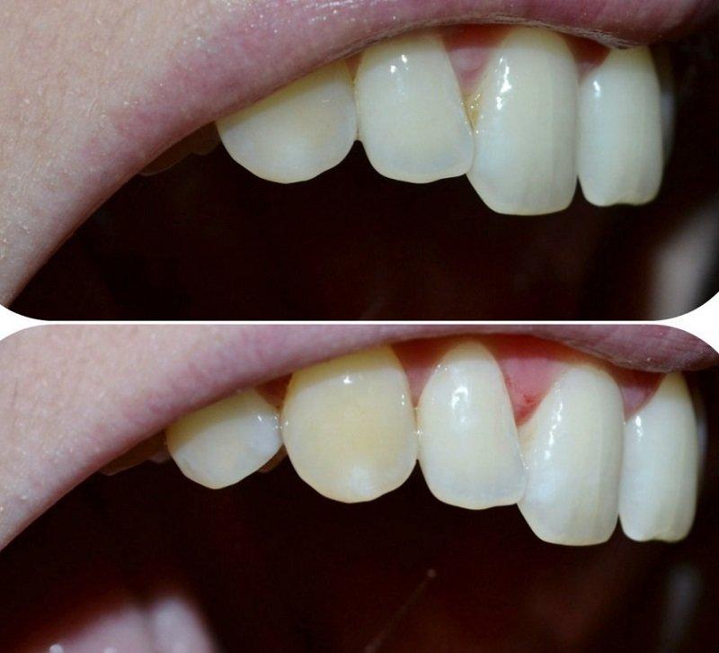 как удалить зубной камень в домашних условиях