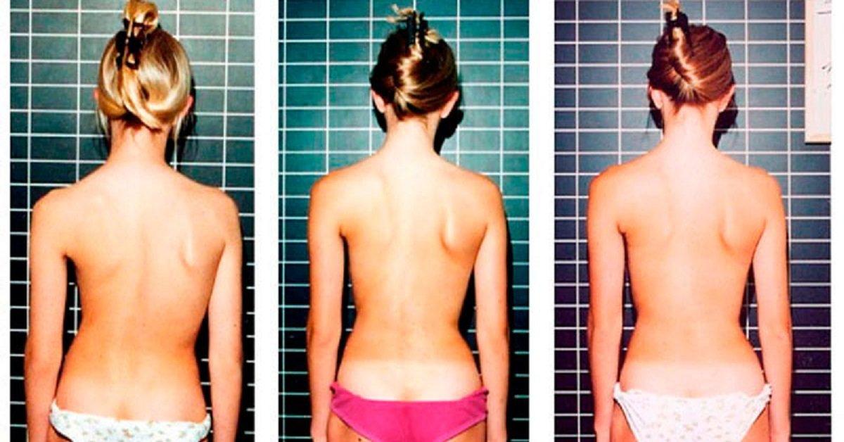 6 упражнений, которые эффективно исправляют осанку. В обязательном порядке попробую!