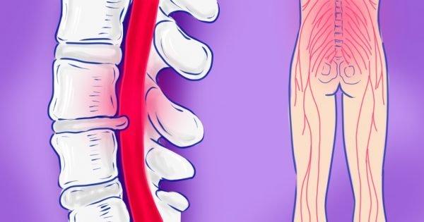 Избавиться от ишиаса можно всего за 15 минут, если ты знаешь эти 2 упражнения! В удовольствие…
