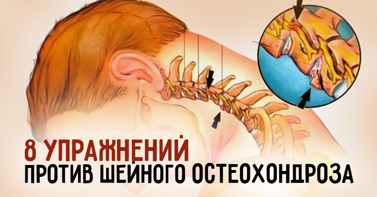 Упражнения от остеохондроза шейного отдела видео