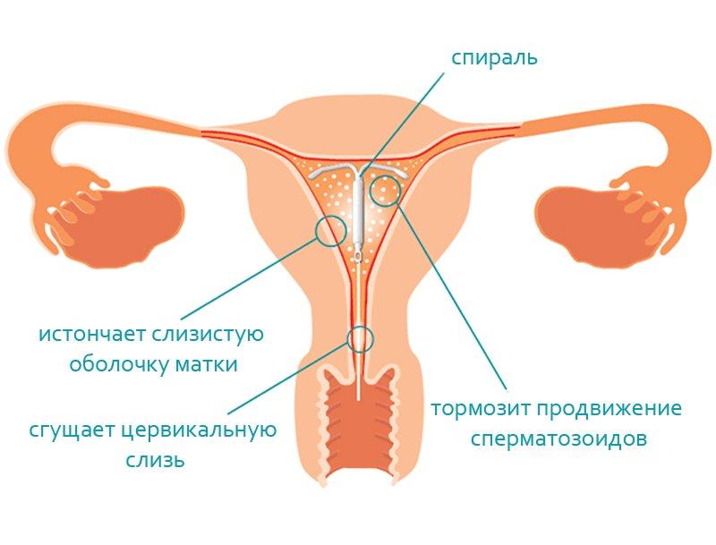 Предохраняют ли вагинальных спиралях