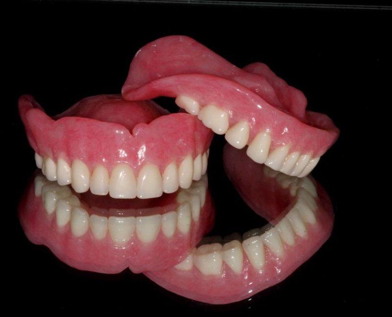 зубные импланты за один день