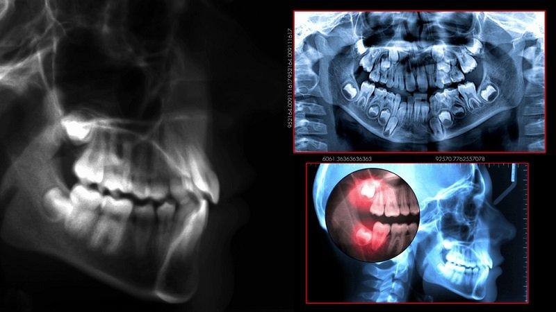 установка импланта зуба этапы