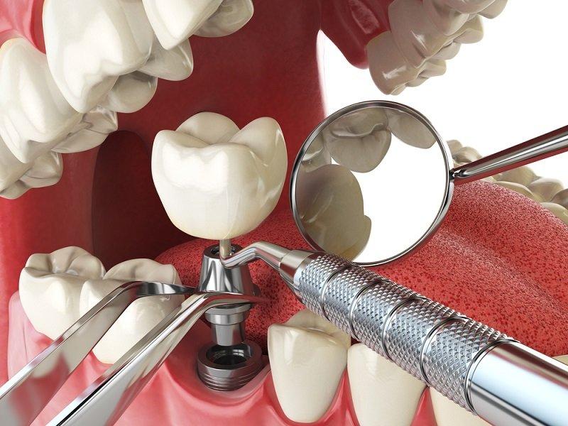 установка зубных имплантов противопоказания