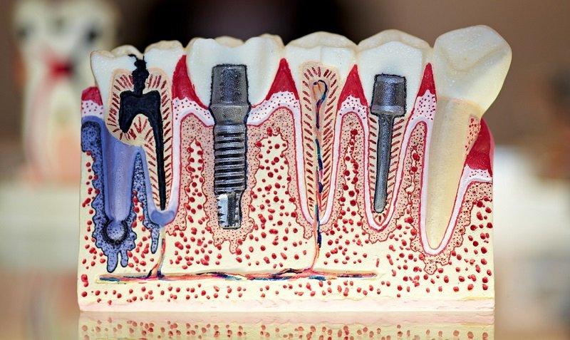 установка зубных штифтов