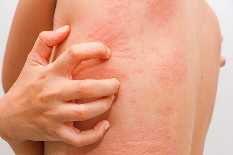 можно ли есть цитрусовые при язве желудка
