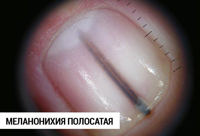 ногти фото