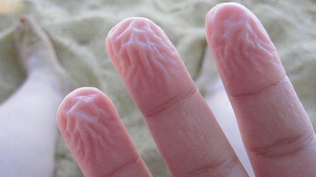 распухшие подушечки пальцев