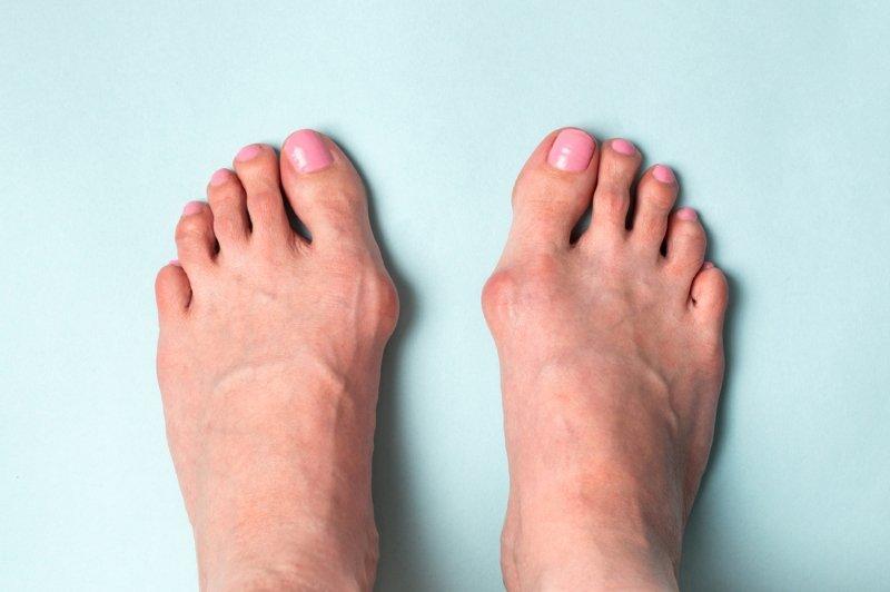 как избавиться от косточки на ноге большого пальца