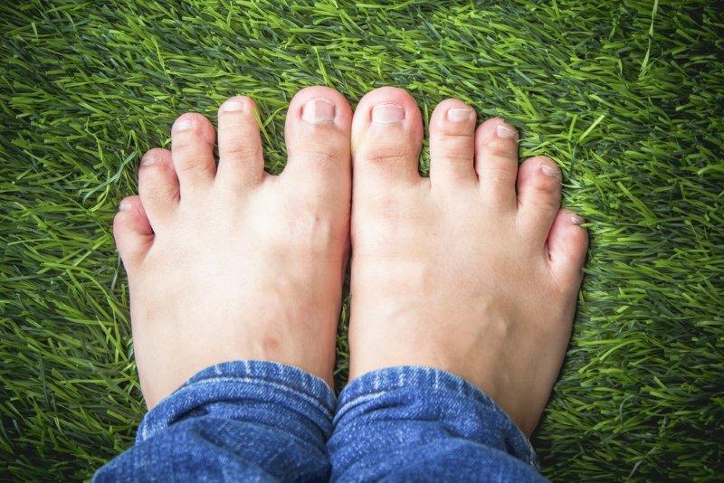 как избавиться от косточки на ноге возле большого пальца