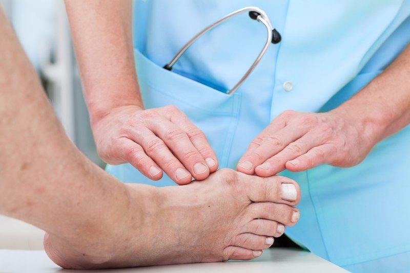 как лечить косточку на ноге большого пальца
